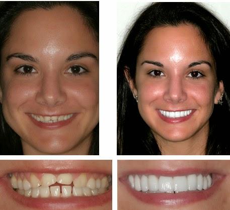 Facettes dentaires dentiste - Facettes dentaires
