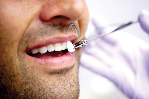 Facettes dentaires cabinet - Facettes dentaires