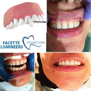 facette3333