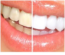 Blanchiment dentaire Tunisie - Blanchiment dentaire