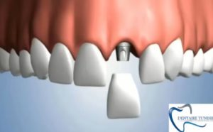 implant dentitse Tunisie - Implant dentaire