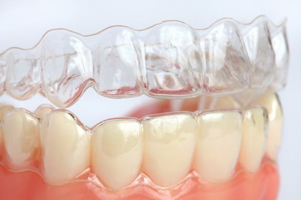 orthodontie-tunisie1