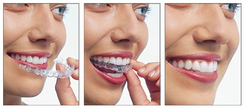 orthodontie-tunisie2